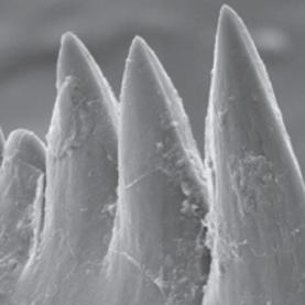 Scherpste tanden